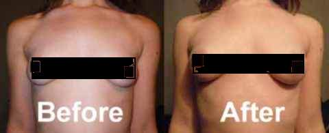 Before and-After-Breast-Actives