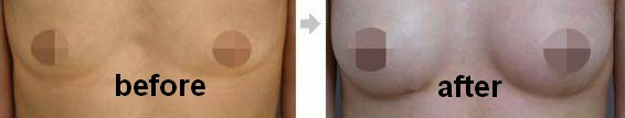 Fat Grafting Breast Augmentation-5503