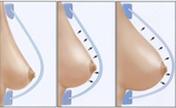 fat grafting breast