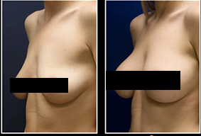 how to make your breasts grow faster