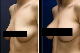 how to use breast actives to maximize results