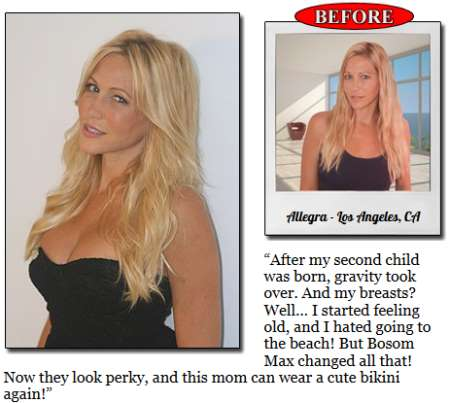 Bosom Max Before and After