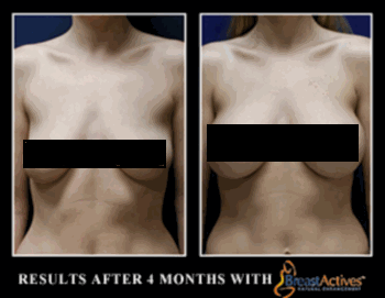 breast lift Breast Actives