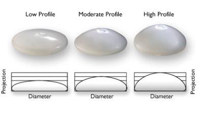 Implant Profile