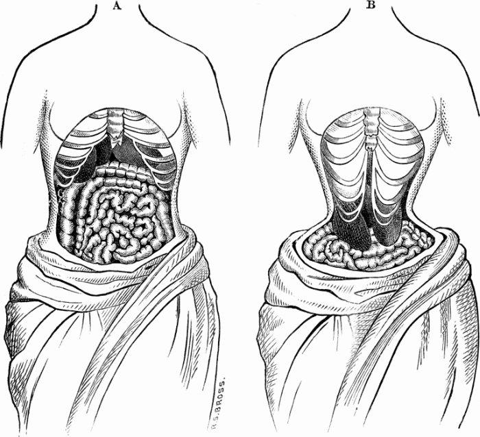 waist training tight lacing