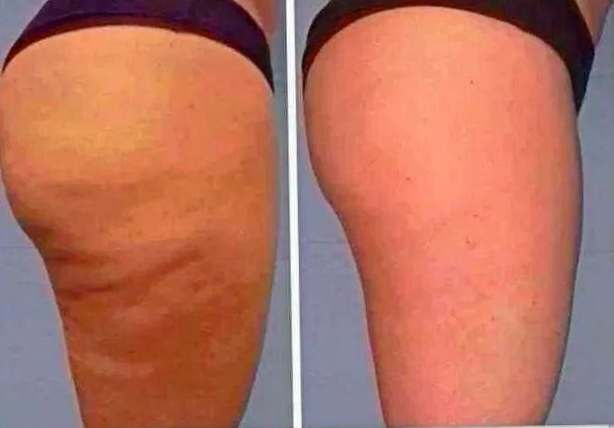 How to remove back fat in a week picture 5