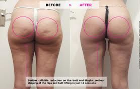 how to cure cellulite before and after photos
